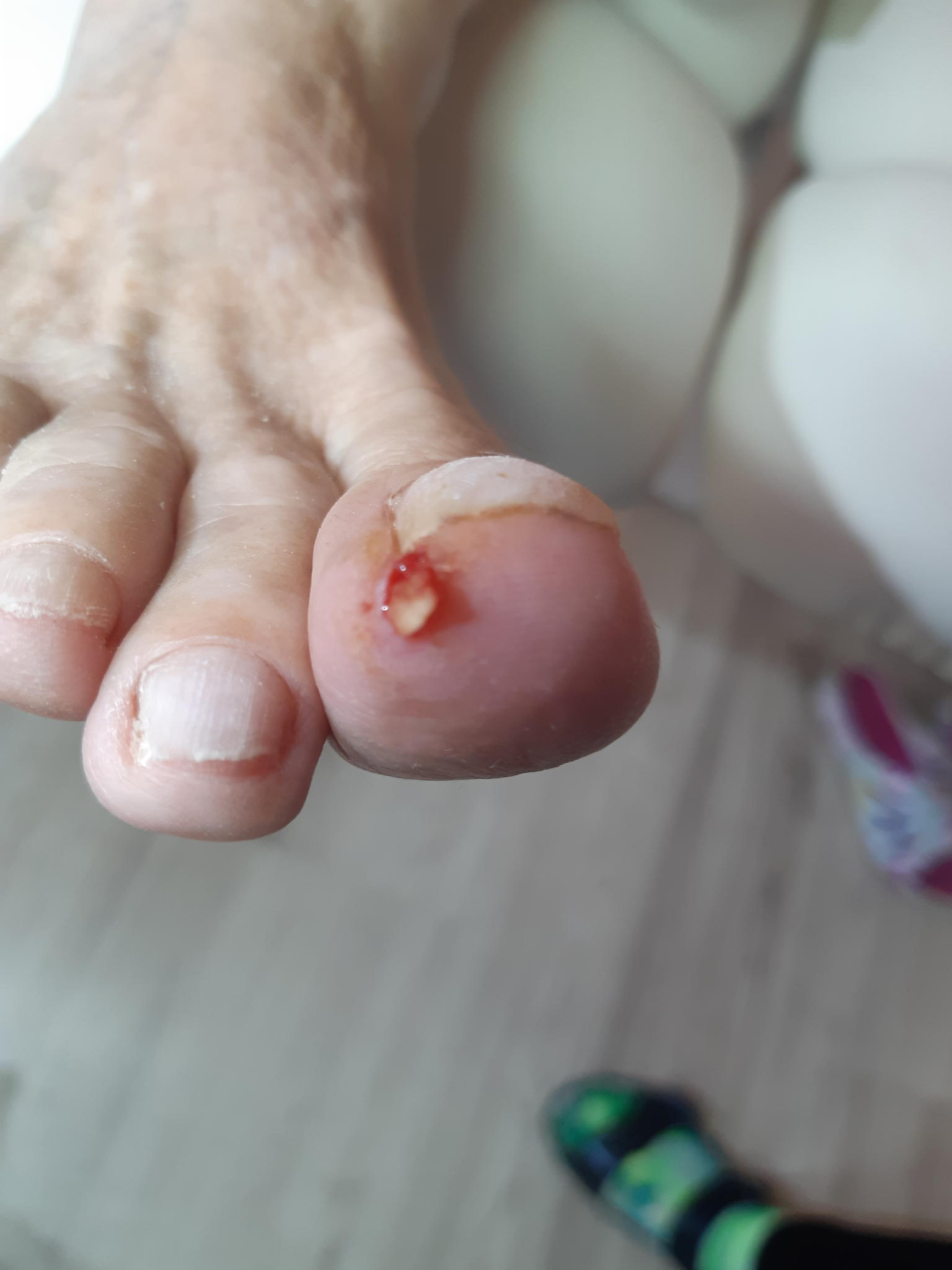 6157ccded13 Probleemsete jalgade hooldus – Jalaravikabinet